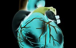 Stampe 3D per interventi al cuore
