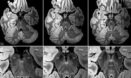 Scansione del cervello